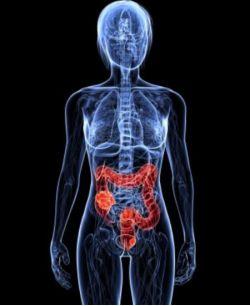 Бессимптомный враг — коллоректальный рак